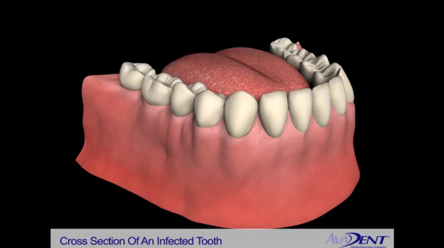 Cross Section of an Infected Tooth