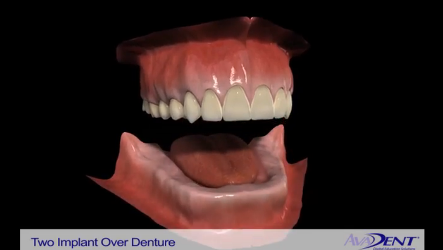 Implants to Stabilize Dentures
