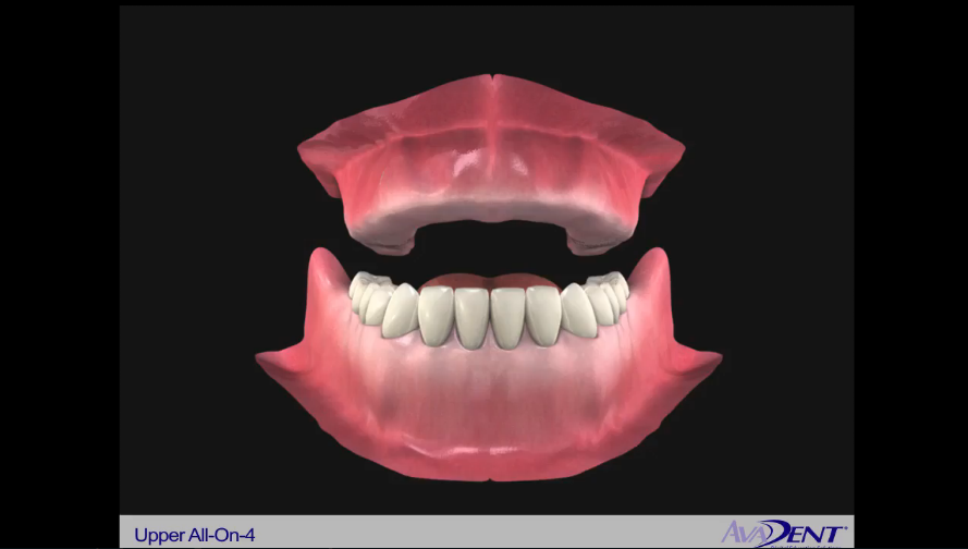 Implants to Support a Fixed Denture