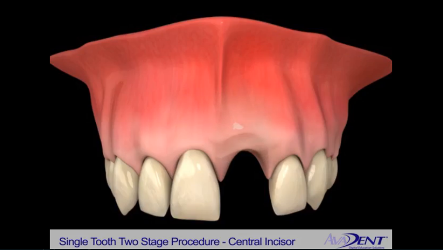 Implants for Tooth Replacement