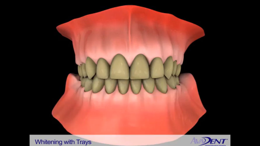Professional Whitening Trays
