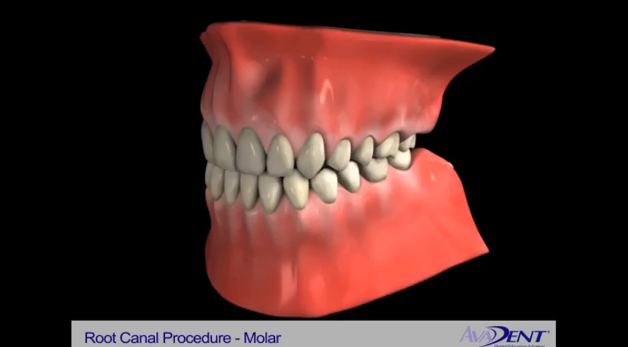 Root Canal Procedure - Molar